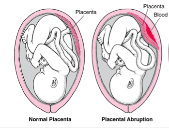 Placental-Abruption-12-22-13